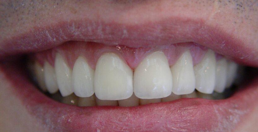 Depois - Caso 1 | Facetas Dentárias / Lentes de Contato