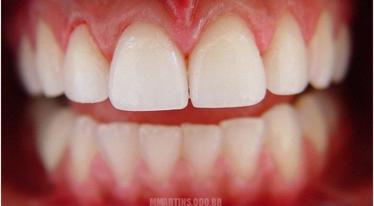 Depois - Caso 2 | Facetas Dentárias / Lentes de Contato