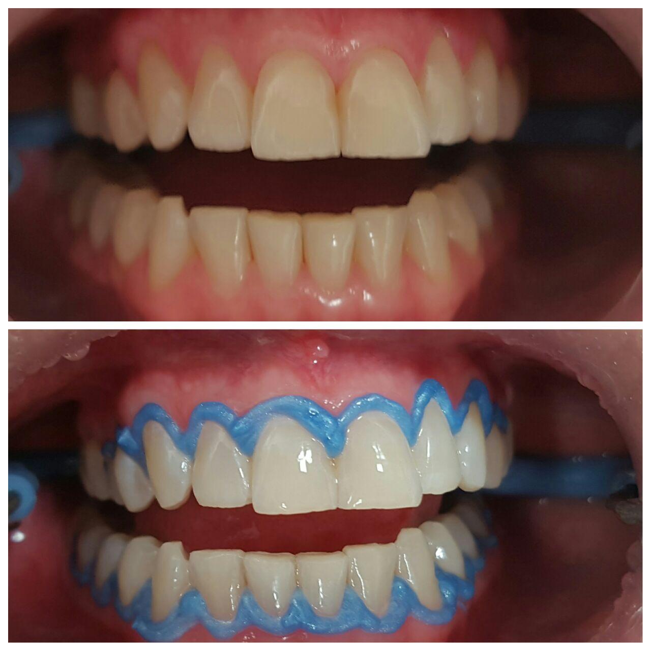 Caso 3 | Odontologia Estética