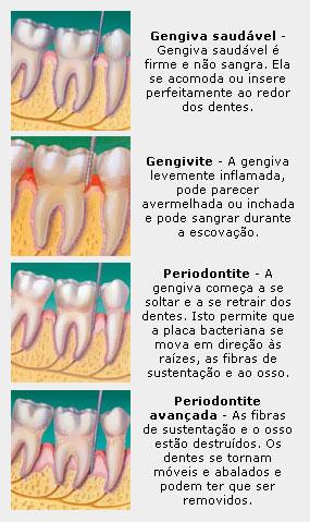 Tratamento | Periodontia