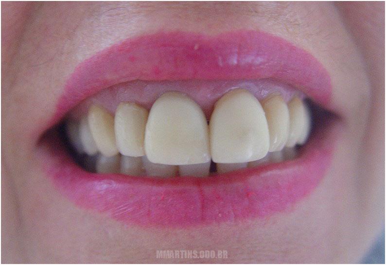 Antes - Caso 2 | Reabilitação Oral