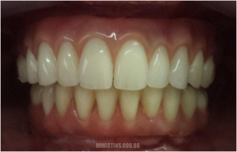 Depois - Caso 2 | Reabilitação Oral
