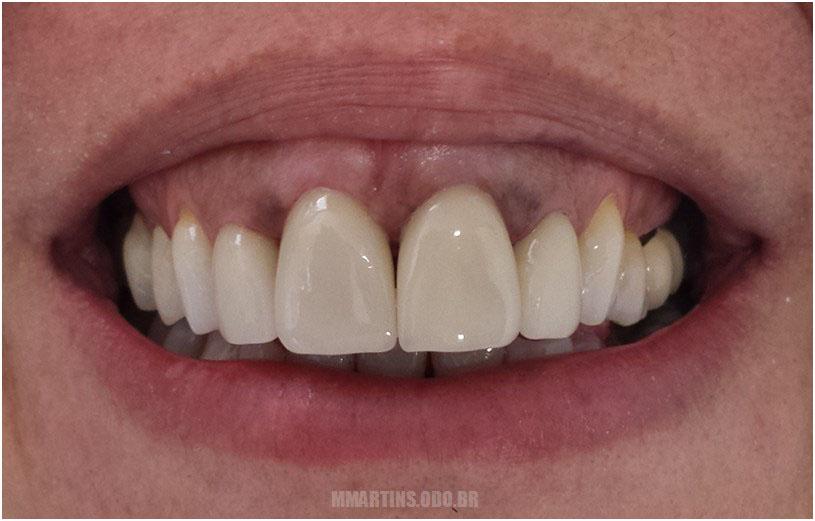 Depois - Caso 4 | Reabilitação Oral