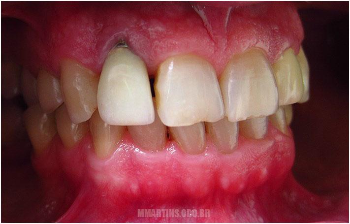 Antes - Caso 3 | Reabilitação Oral