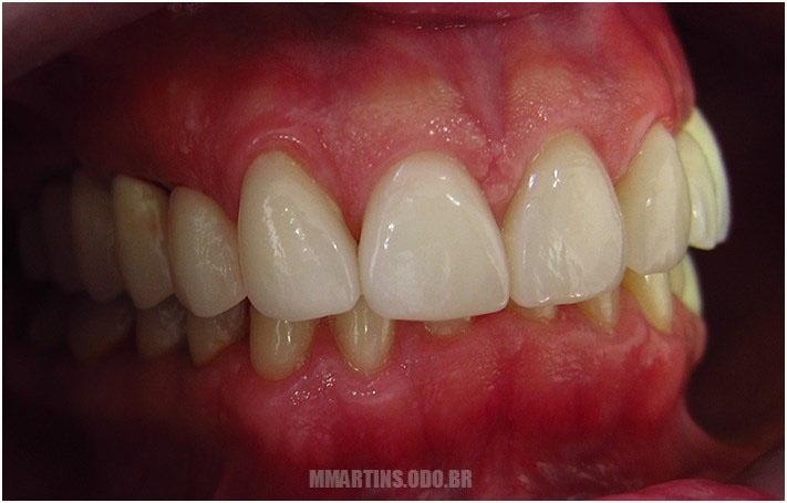 Depois - Caso 3 | Reabilitação Oral