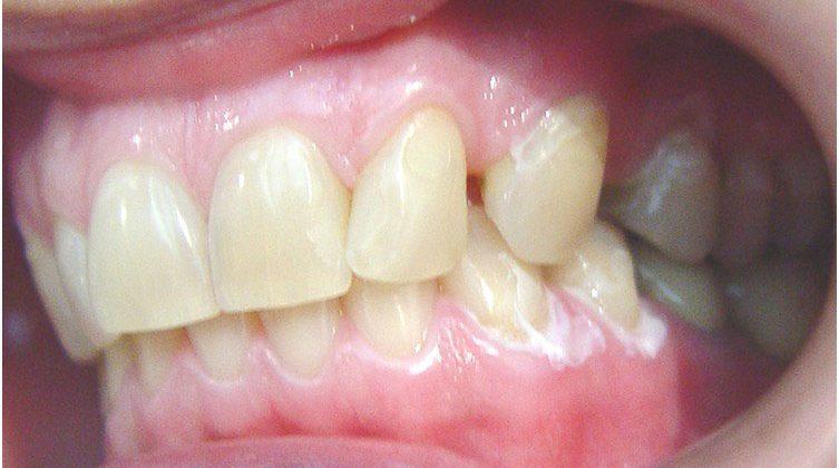 Tratamento | Ortodontia