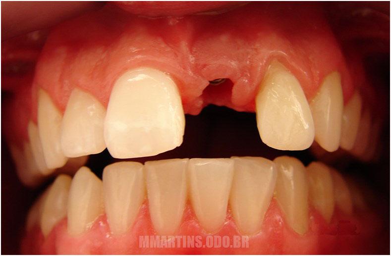 Antes | Implantodontia
