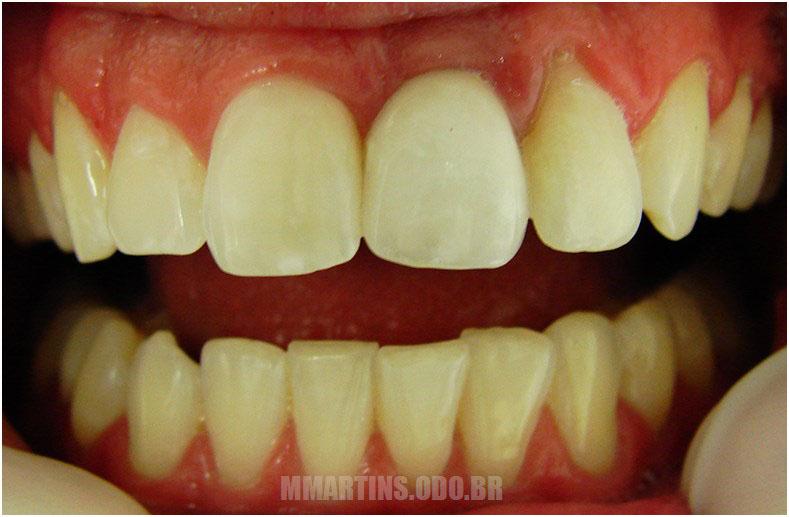 Depois 2 | Implantodontia