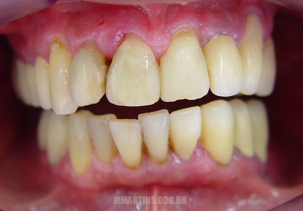 Antes - Caso 1 | Reabilitação Oral