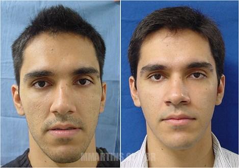 Caso 1 | Cirurgia Ortognática