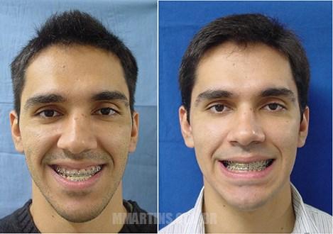 Caso 1-3 | Cirurgia Ortognática