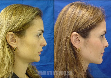 Caso 2 | Cirurgia Ortognática