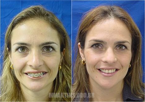 Caso 2-2 | Cirurgia Ortognática