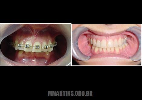Caso 2-4 | Cirurgia Ortognática