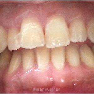 Antes - Caso 1-2 | Odontologia Estética