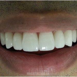 Depois - Caso 1 | Odontologia Estética