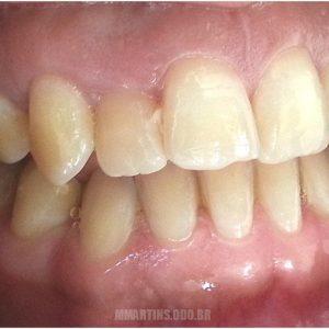 Antes - Caso 1 | Odontologia Estética