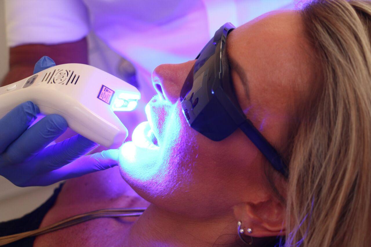 Tratamento | Odontologia Estética