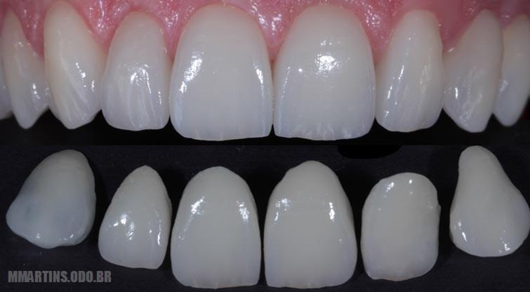 Facetas Dentárias / Lentes de Contato